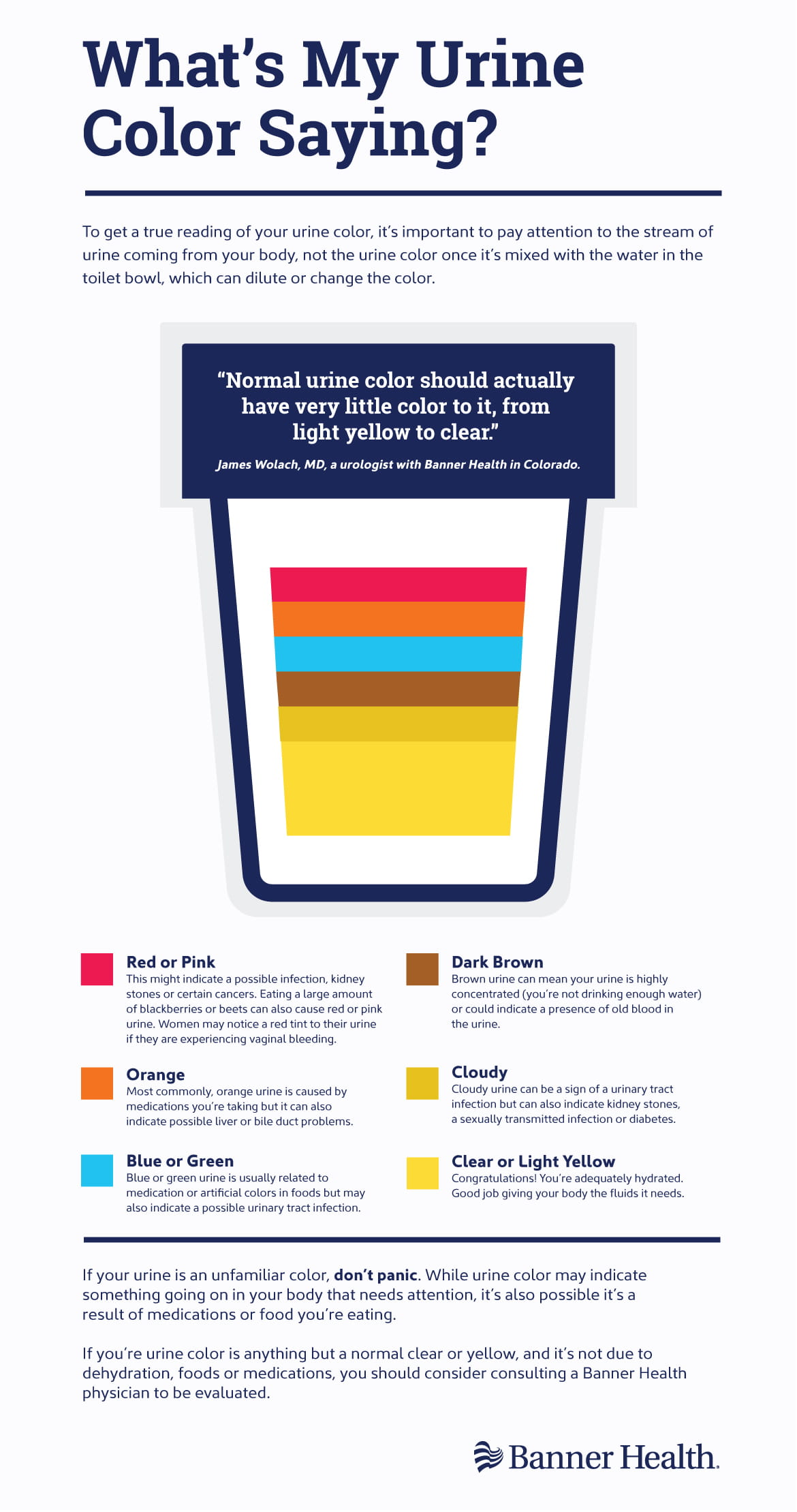 Urine Color Infographic